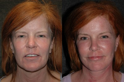 Endoscopic Browlift Before and After