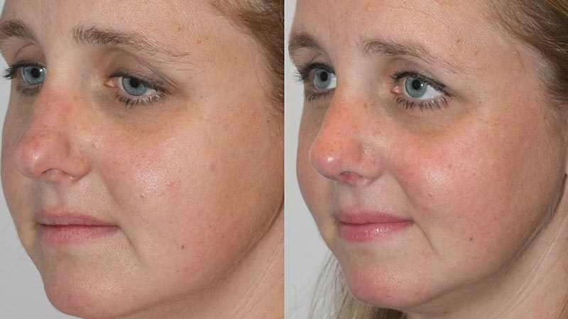 Rhinoplasty - Before and After